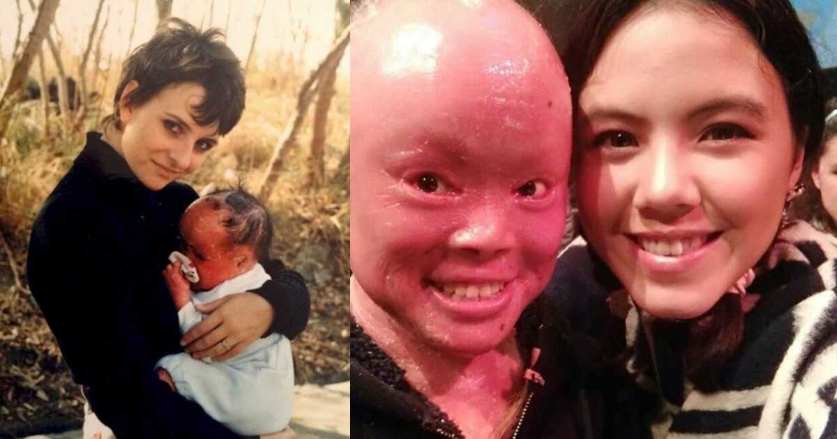 This Girl Hid From The World For 22 Years Due To Rare Skin Condition