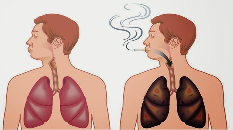 4 Super Foods That Cleanse The Lungs