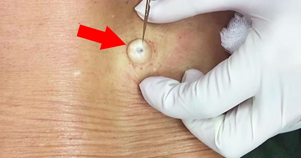 She Had A Lump On Her Back For Years, But When Doctors Took A Look, They Were Puzzled